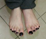 The uncleaned toe nails.